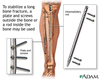 Cutaway medical illustration shows repaired fibula and tibia with plate and screws, and intramedullary rod and screws.