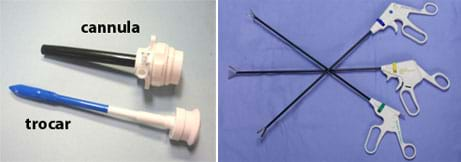 Two photos: (left) Two instruments. Both have long, slender rods attached to wide ends. The trocar has one pointed end and narrower rod. (right) Three instruments. All have scissors-like handles attached to long rods with small grasping or cutting tools at the ends.