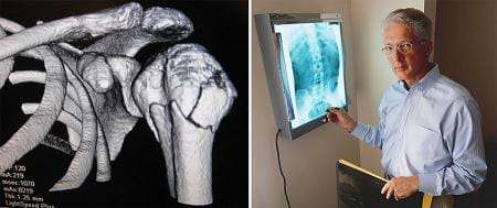 Two photos: (left) 3-D black and white image of upper arm and shoulder shows fractures in top of humerus bone, (right) a man standing by a wall-mounted light box that displays an x-ray of a human spine.