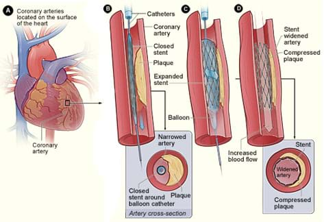 Cut-away diagram shows an expanding balloon and metal mesh stent, entering, pushing out on the walls, and leaving the stent in an artery.