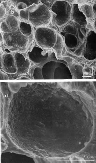 SEM image of alveoli with a magnified image of a single air sac below it.