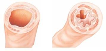 Drawing of a normal bronchus on the left compared to an asthmatic bronchus on the right.