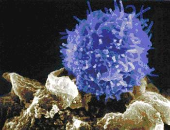 A microscopic image shows a spiky blue ball, a T cell, attacking a foe, an unfriendly cell.