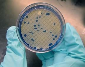 Picture of colonies of fecal coliform bacteria filtered from water samples and grown on mFC nutrient agar. The sample indicates fecal contamination of the water.