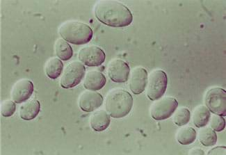 A microscopic photograph shows a clustering of about 25 gray oval shapes.