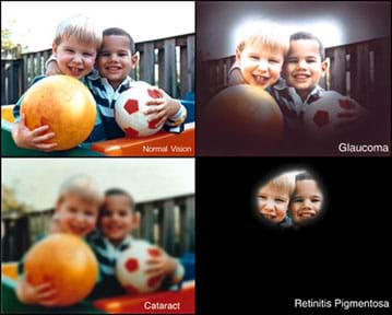 """Four images show the same view of two older toddler boys embracing and holding a soccer ball and bouncy ball near a wooden fence. The first image is """"normal vision."""" The glaucoma version is darkened all around the edges, with only the boys' heads (in the center) looking like normal vision. The retinitis pigmentosa version is like the glaucoma version with the darkened edges even more pronounced, leaving just the eyes, noses, foreheads and mouths of the kids' faces visible. The cataract version shows the entire image (no blackened areas), but it is overall fuzzy, not crisp."""