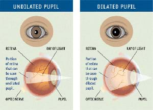 Medical diagram shows dilated and undilated eye pupils in front and side views.
