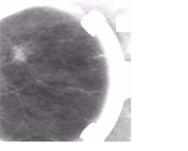 A mammogram image showing a tumor. Provided by Vanderbilt University Radiology Department.